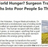 An end to world hunger