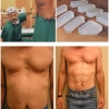 Six pack plastic surgery
