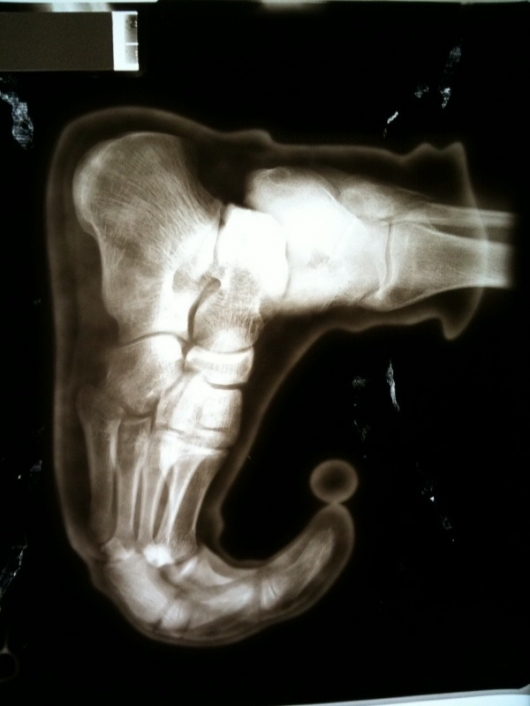 Elf Foot X Ray Really Funny Pictures Collection On